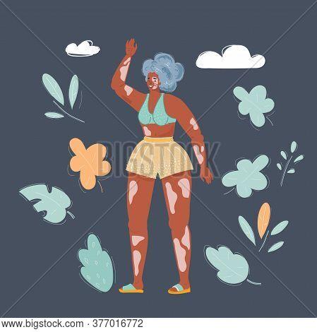 Vector Illustration Of Beautiful Woman With Vitiligo On Dark Background. Body Positive Concept.
