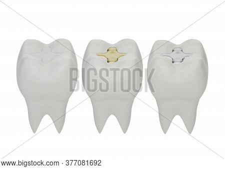 Teeth With Gold, Amalgam And Composite Inlay Dental Filling