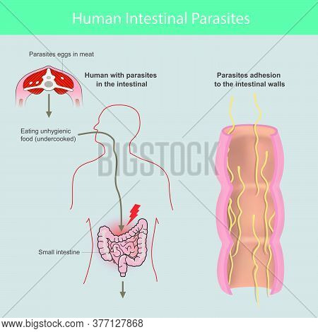 Human Intestinal Parasites. Illustration Explain The Parasites  In Human Small Intestine From Cause