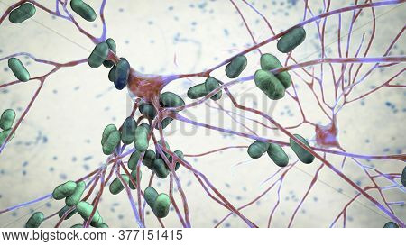 Bacteria Infecting Neurons, Brain Cells, 3d Illustration. Conceptual Illustration Of Bacterial Encep