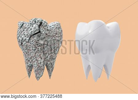 Affected Broken Molar Tooth And Clean White Tooth Isolated On Orange Background. 3d Illustration