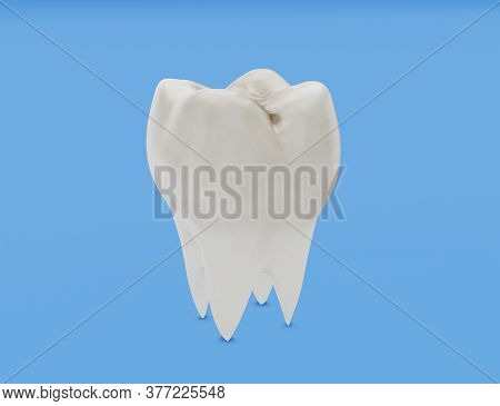 One Molar Tooth, Tooth Decay, Caries. 3d Illustration