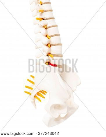 Lumbar Spine And Sacrococcygeal On A White Background, Isolate. Intervertebral Hernia Of The Spine,