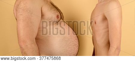 Fat Vs Slim Man, Obese Men. Skinny Torso Vs Fat Men Stomach