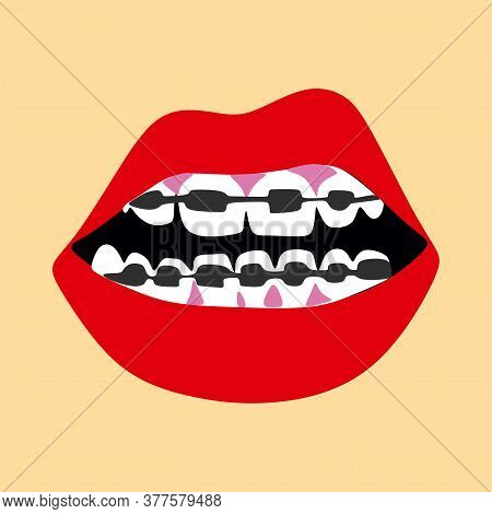 Dentist, Orthodontist. Braces On Your Teeth.open Mouth.dentition With Braces, Dental Braces.red Lips