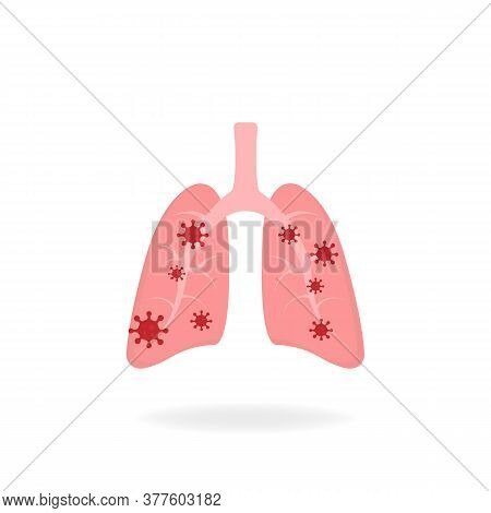 Infected Lungs. Microscopic Viruses Infected By The Lungs Flat Design. Coronavirus Concept. Isolated