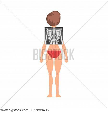 Spine X-ray Examination Vector Illustration. Young Woman Being Examined In The Hospital