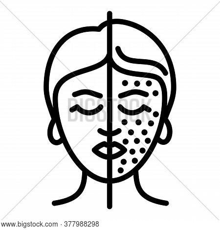 Woman Face Lifting Icon. Outline Woman Face Lifting Vector Icon For Web Design Isolated On White Bac