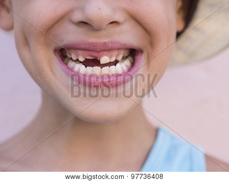 toothless smile, closeup