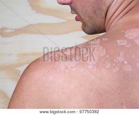 Sunburned Male Back