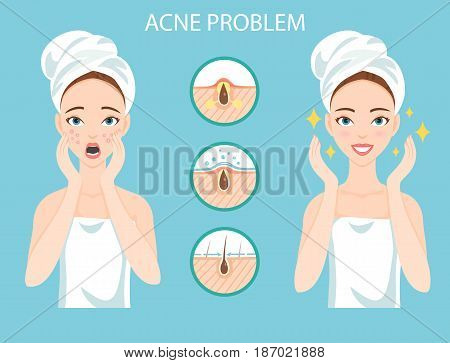Troubled teen with female facial skin problem needs to care about: infographic of acne disease and stages of it's treatment.