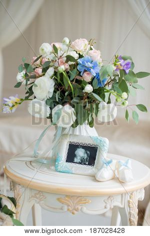 Children's shoes and ultrasound of the baby's fetus with a beautiful bouquet of flowers. Children's accessories.