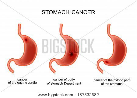 vector illustration of a cancerous disease of the stomach
