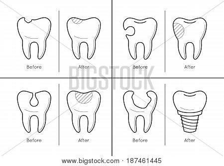 Icons of tooth before and after treatment, reconstruction or prosthetic in thin line style. Sick and healthy enamel of teeth. Dental problems. Vector outline simple illustrations isolated on white