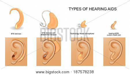 vector illustration of the types of hearing AIDS