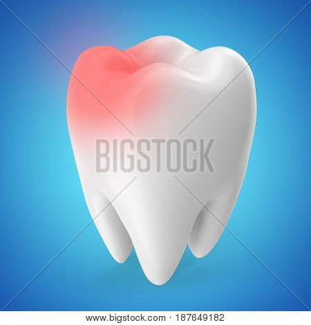 Toothache concept, caries concept isolated on blue tints, 3D rendering