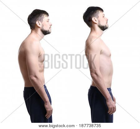 Rehabilitation concept. Collage of man with poor and good posture on white background