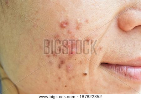 Acne on the face inflammation, dark spots, pores.