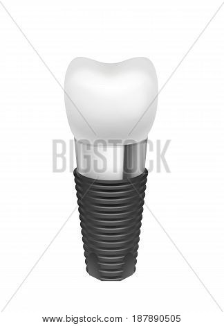 Vector metal assembled tooth implant side view isolated on white background