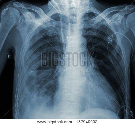 Roentgen image of patient in surgery department.