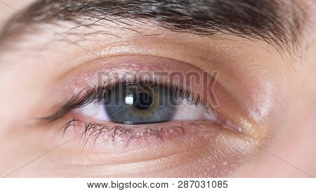 Close-up Of Human Eyes. Beautiful Eye Of Young Man With Pupil Shrinking From Light. Human Eye Gray A