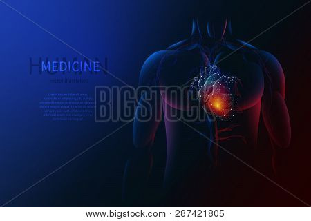 Vector Isolated Heart With Pain Center. Low Poly Wireframe. Polygonal 3d Human Body And Organ On Dar
