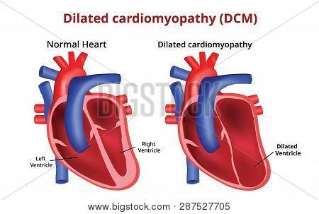 Dilated Cardiomyopathy, Heart Disease, - Vector Image