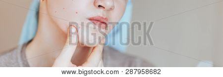 Scowling Girl In Shock Of Her Acne With A Towel On Her Head. Woman Skin Care Concept Photos Of Ugly