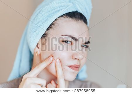 Teenage Girl Squeezing Her Pimples, Removing Pimple From Her Face. Woman Skin Care Concept Photos Of