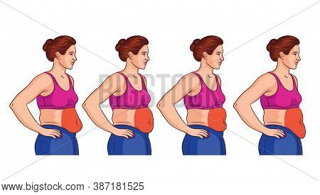 Color Vector Illustration Isolated On White Background. Four Types Of Belly In Women. Overweight Wom