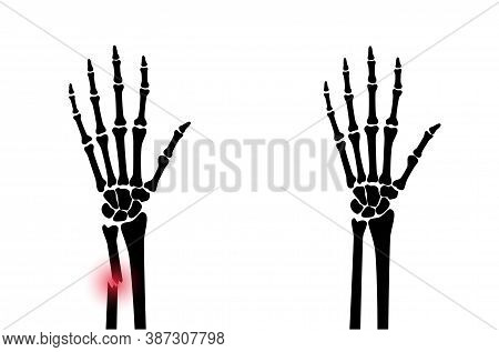 X Ray Of Arm Fracture With Red Pain Point And Normal Arm. Broken Hand With Inner Closed Greenstick T