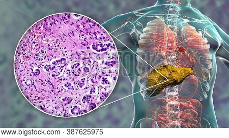 Liver With Cirrhosis Inside Human Body. 3d Illustration And Light Micrograph Of Small Nodular Cirrho