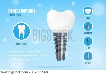 Advertisement Poster With Realistic 3d Vector Illustration Dental Implant Structure