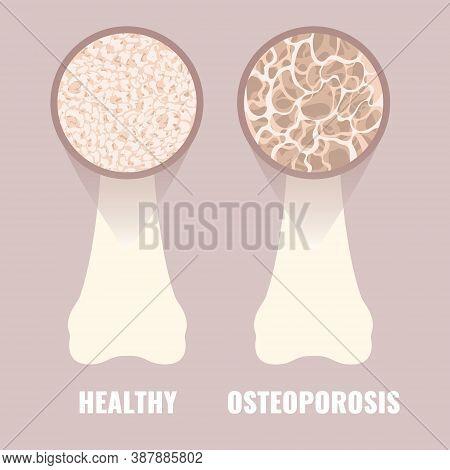 Osteoporosis Bone Density Loss Disease Medical Infographics