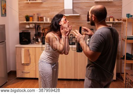 Wife Showing Bruises From Agressive And Alcoholic Husband After Being Abused. Traumatised Abused Ter