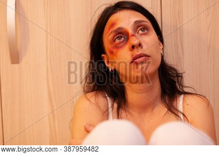 Abused Woman With Bruises Crying After Being Brutaly Beating By Husband. Traumatised Helpless Terrif
