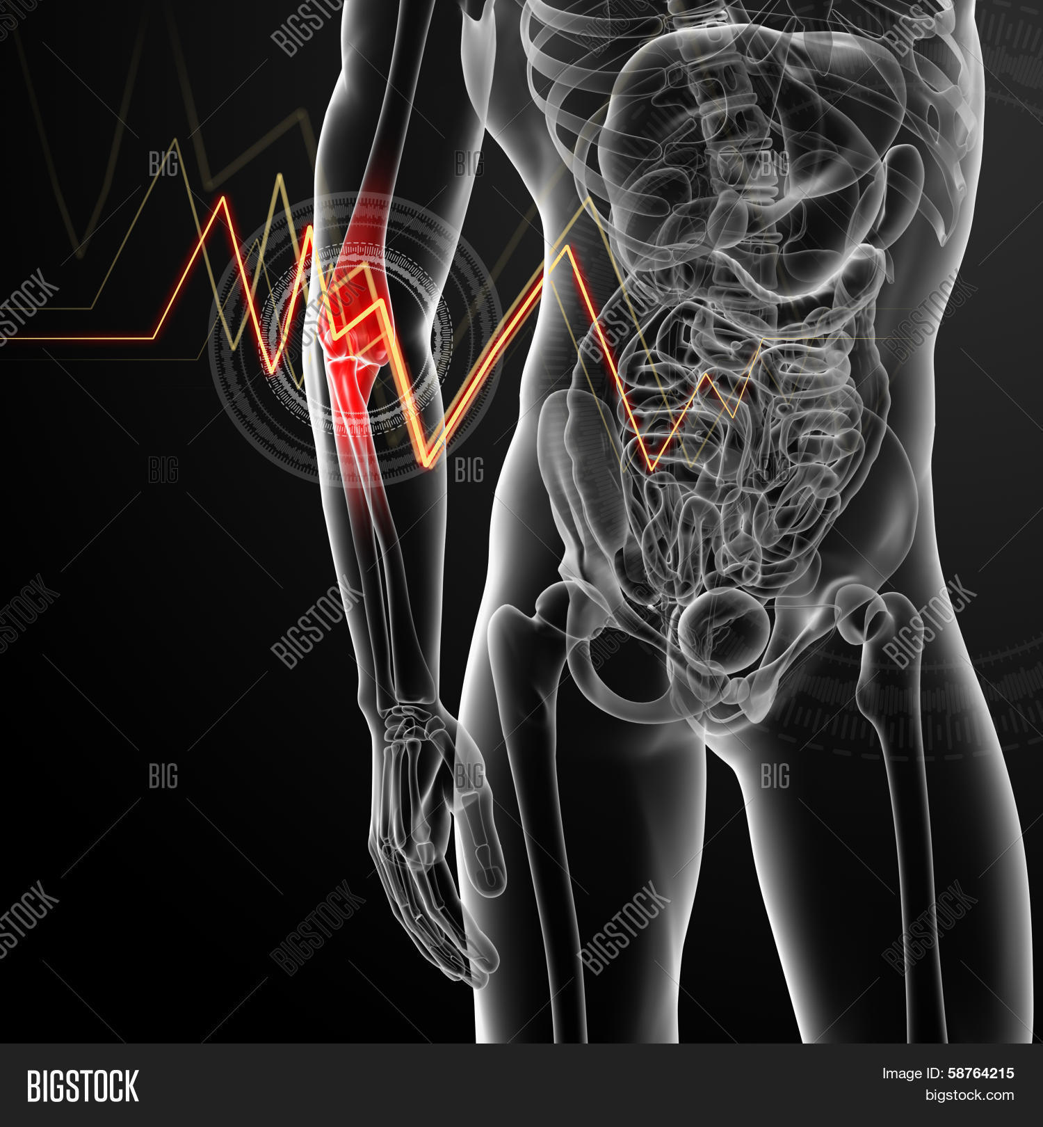 3d Render Illustration Elbow Pain Image & Photo | Bigstock