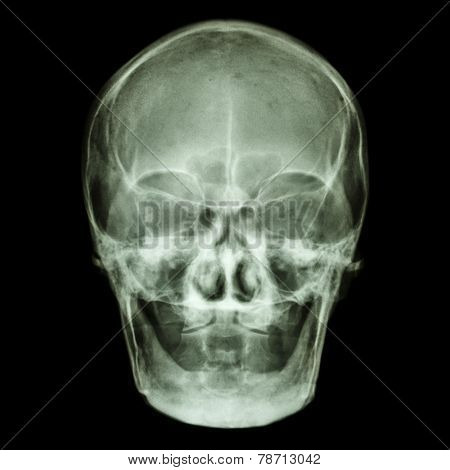 Normal Old Aged Asian Skull (thai People),(no Tooth)