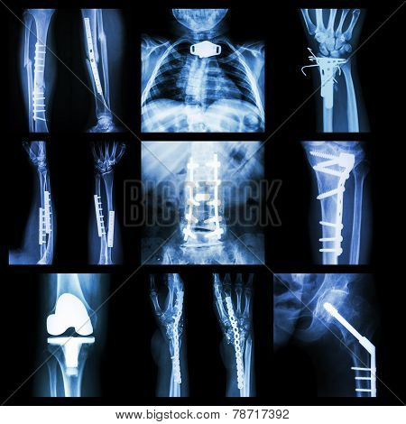 Collection Of Orthopedic Operation