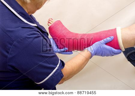 Ladies leg in Cast being treated by a Nurse