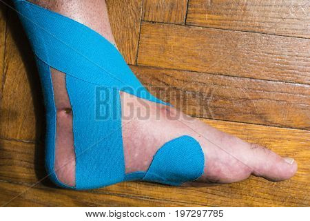 Elastic Therapeutic Tape Of Dislocated Foot.