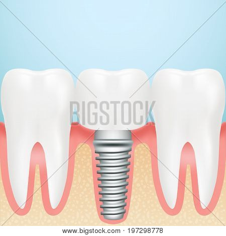 Realistic Dental Implant. Installation Of Dental Implant With All Parts Crown, Abutment, Screw Isolated On A Background. Vector Illustration. Stomatology. Creative Medical Concept