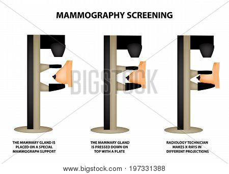 Stages of mammography. Mammographic screening. Mammogram apparatus. World Breast Cancer Day. Infographics. Vector illustration on isolated background