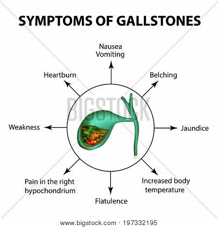 Symptoms of stones in the gallbladder. Infographics. Vector illustration on isolated background.