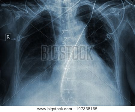 X-ray image of human ribcage. Macro photo