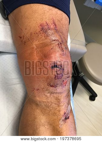 Closeup of an injured an infected knee after a bad fall. The man is sitting on the treatment table in a doctors office.