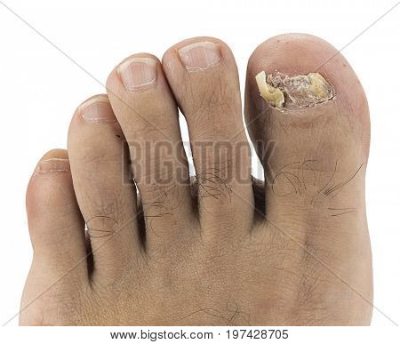 Close up image of left foot toenail suffering from fungus infection isolated on white background.