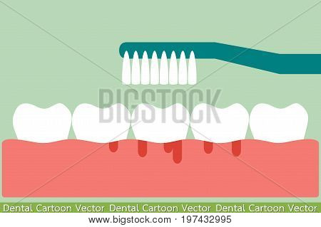 Brushing Teeth With Bleeding On Gum And Tooth Concept Gingivitis Or Scurvy