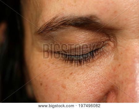 Wrinkles on the eyelid. Flabby old skin.