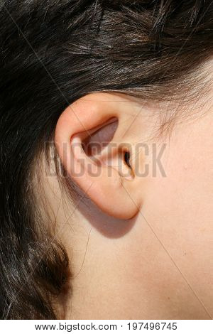 Deformed ear. Abnormal development of the auricle. Plastic surgery and cosmetology.